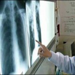 World TB Day – Experts warned risk of an untreatable strain of tuberculosis (TB)