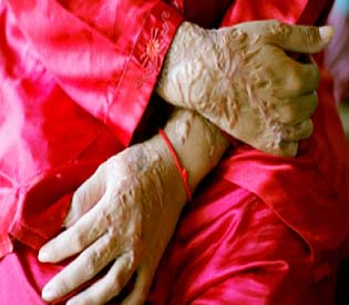 human rights observers india acid attack victim in critical condition women rights