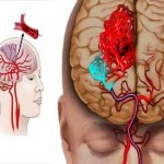 Brain attacks as serious as heart attacks