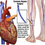 Bypass May Beat Angioplasty for Diabetics With Heart Disease