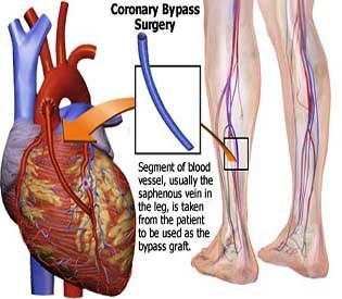 hromedia - Bypass May Beat Angioplasty for Diabetics With Heart Disease