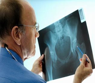 hromedia  Not just women; men too get affected by bone diseases