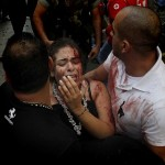 News Update: Beirut bombing death toll rises to seven