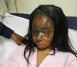 hromedia UK woman sentenced to 12 years in jail for acid attack on friend eu news2