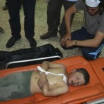 Syrian children killed by Assad's chlorine gas bombs