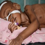 Up to 200,000 kids may die in Somalia as aid runs dry, UNICEF claims