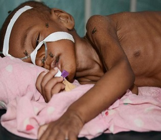 hromedia Up to 200,000 kids may die in Somalia as aid runs dry, UNICEF claims intl. news2