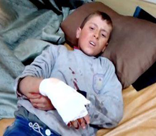 Still image taken from video shows a boy lying on a bed with an injured hand after what is said to be a missile attack on a hospital in Azaz