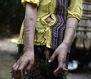 Beaten and burnt- Myanmar's invisible child