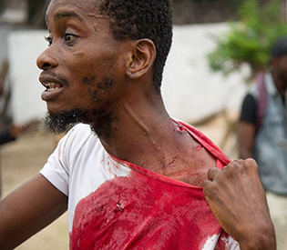 Deadly clashes in DR Congo for second day