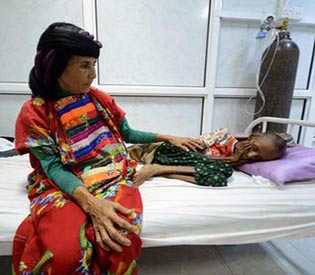 A picture and its story- Severe malnutrition in Yemen