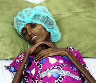 Yemen children acutely malnourished