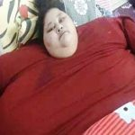 World's heaviest 500-kg woman arrives in India for weight loss treatment
