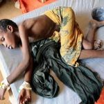 Threat of malnutrition still high in Somalia despite onset of rains